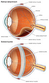 Diagram of a scleral buckle, used to repair a retinal detachment. - Stock Image - BB4J05