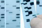 DNA sequencing. Scientist points to bands representing nucleotide bases (A,C,T,G) in an x-ray image of a gel.  Sanger method. - Stock Image - C073PE